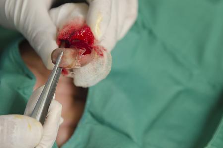 Doctor was dressing  thumb nail.