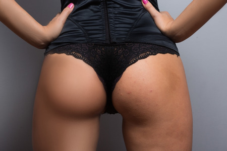 ass close-up, one buttock processed in another acne