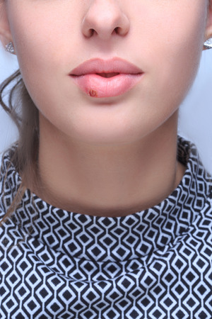labialis: beautiful lips virus infected herpes