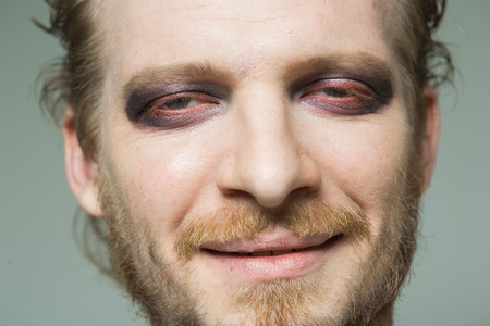 bulging eyes: portrait of a man with hooded eyes. Stock Photo