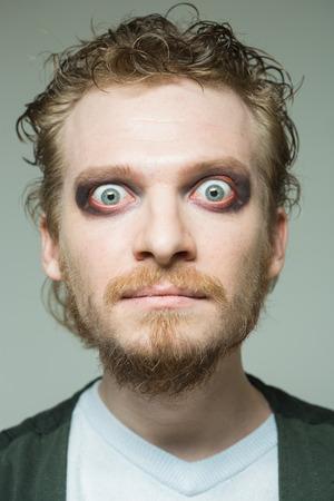 bulging: portrait of a man with bulging eyes.