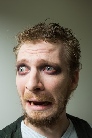 bulging eyes: frightened man with red painted eyes. Stock Photo