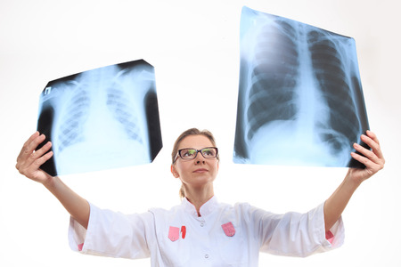 human lung: doctor compares the two X-ray. White background Stock Photo