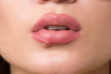 herpes simplex: beautiful sexy lips virus infected herpes. close-up Stock Photo