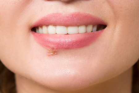 labialis: beautiful sexy lips virus infected herpes. close-up Stock Photo