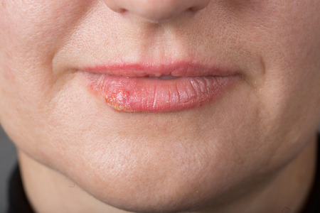 herpes simplex: Lip infection with the herpes simplex virus