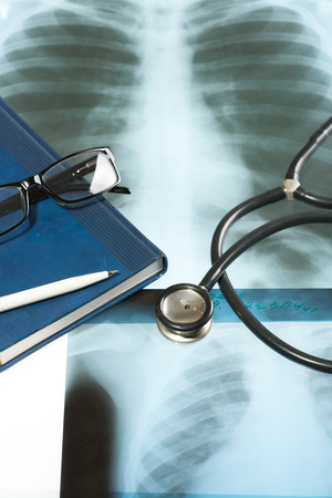 x ray equipment: Doctors desk, medical concept. X-ray and stethoscope. Stock Photo
