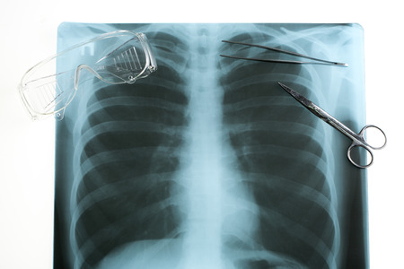 x rays negative: Doctors desk, medical concept. X-ray and protective glasses Stock Photo