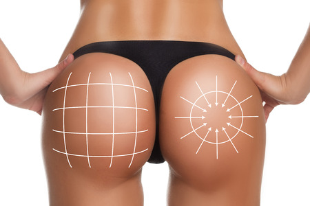 plastic surgery, beauty and bodycare concept. female ass with lines Imagens