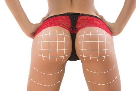 female ass: plastic surgery, beauty and bodycare concept. female ass with lines Stock Photo