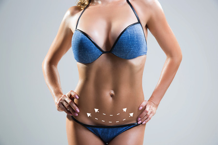 marked: Body correction with the help of plastic surgery. Woman belly marked out for cosmetic surgery or liposuction.