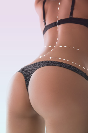 correction lines: Woman with correction lines in thong. On white background.