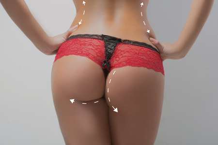girls in panties: plastic surgery, beauty and bodycare concept. female ass with lines Stock Photo