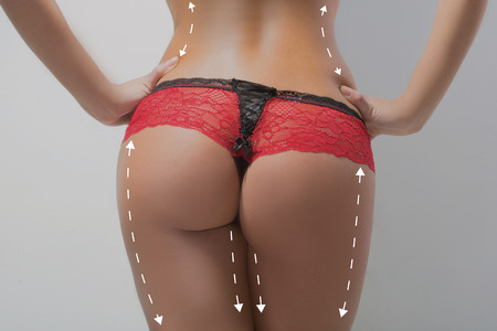 black bikini: plastic surgery, beauty and bodycare concept. female ass with lines Stock Photo