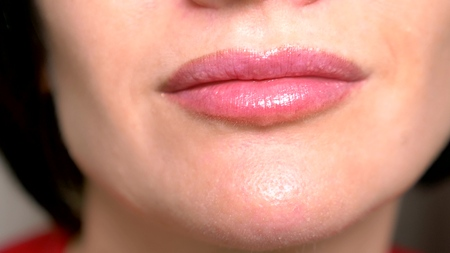 super close up. female lips with lip gloss, smile. dermatological disease of the mucous lips, Fordyce granules