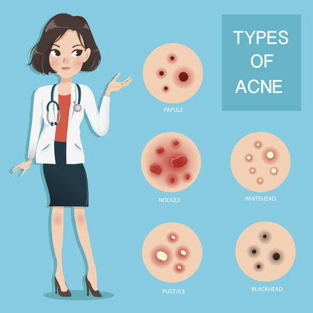 Young women doctors recommend and educate the type of acne. Illustration