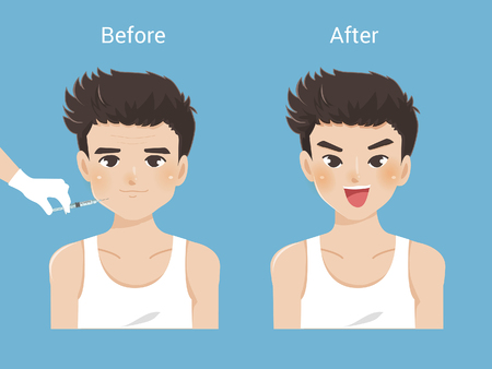 Man's anti-aging skin care and men's cosmetics. Different types of facial wrinkles, mimic wrinkles. Age-related skin changes.