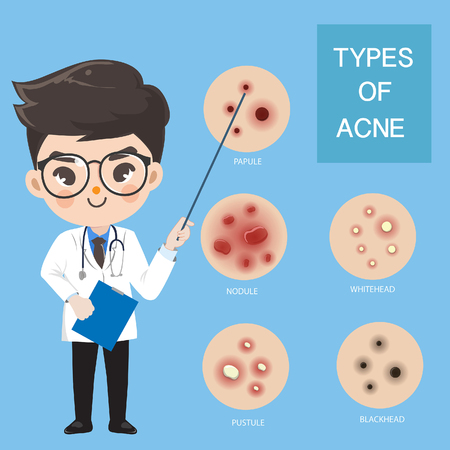Cute boy doctors recommend and educate the type of acne.
