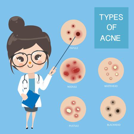 Les jeunes femmes médecins recommandent et éduquent le type d'acné. Vecteurs