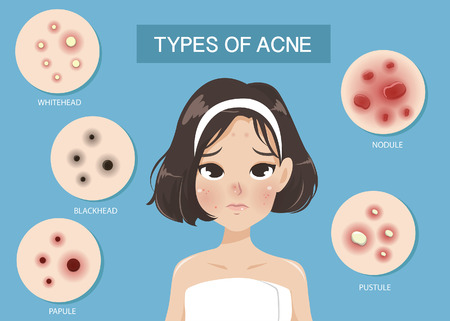 Types of acne occur on the face of the girl shot hair. Vetores