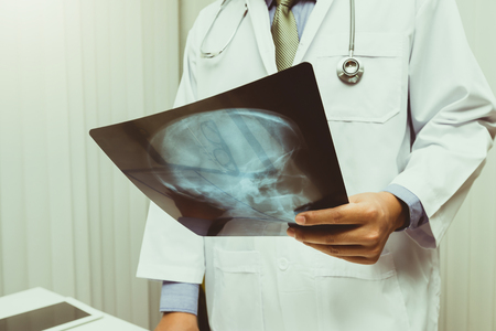 Doctor diagnose and analyze on x-ray film of patient. Medicine and health care concept. Standard-Bild - 116540142