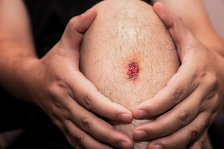 Closeup of fresh wound on man's knee from accident. 写真素材