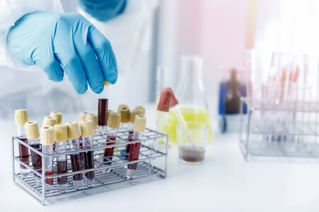 Researchers test blood samples in the laboratory. Researchers are inventing vaccines to treat COVID-19 virus.