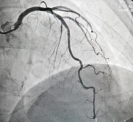 Disease of left anterior descending artery, it cause chest pain
