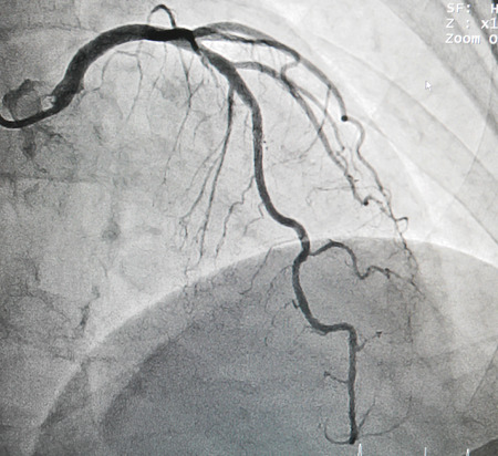 Disease of left anterior descending artery, it cause chest pain