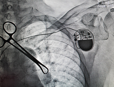 stimulated: VVIR pacemaker in x-ray image in cardiac catheterization laboratory