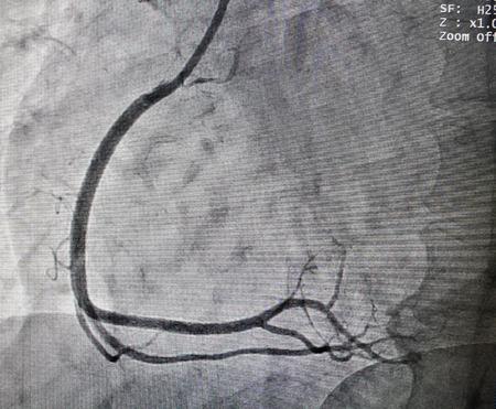 Normal right coronary artery in x-ray image in cardiac catherization laboratory