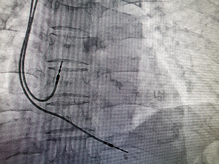 DDDR pacemaker cable in x-ray image in cardiac catheterization laboratory