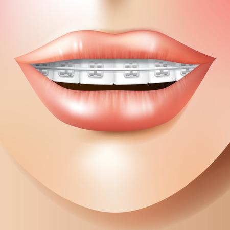 braces: Orthodontic care Illustration
