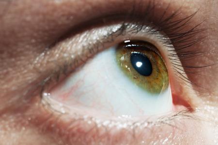 vaisseaux sanguins: Hommes verts des yeux avec les vaisseaux sanguins rouges de pr�s Banque d'images