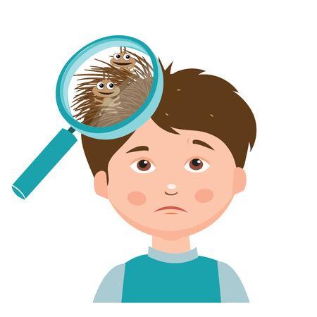 Boy mit Läusen. Vergrößerungsglas Nahaufnahme eines Kopf. Vektor-Illustration. Schmutzige Kopf. Schmutziges Haar. Infektion. Kopfläuse auf den Kopf. Armes Kind. Schlamm. Hygiene Promotion. Armut. Asoziale.