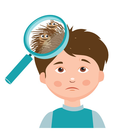 nit: Boy With Lice. Magnifying Glass Close Up Of A Head. Vector Illustration. Dirty Head. Dirty Hair. Infection. Head Lice On The Head. Poor Child. Mud. Hygiene Promotion. Poverty. Asocial.