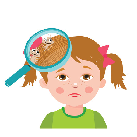 lice: Girl With Lice. Magnifying Glass Close Up Of A Head. Vector Illustration. Dirty Head. Dirty Hair. Infection. Head Lice On The Head. Child With Lice. Mud Girl. Hygiene Promotion. Poverty Girl.
