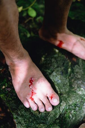 Wounds and blood on men foot caused by bloodsucker in Hala Bala wildlife sanctuary. Thailand.
