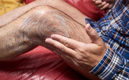 Man applying an anti-inflammatory ointment on a leg