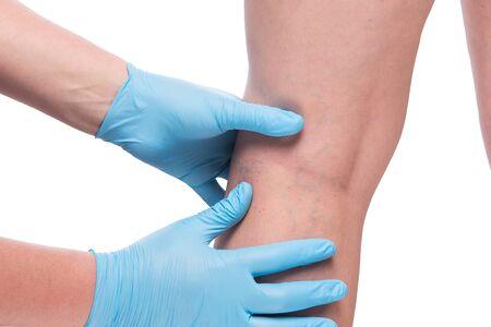 Manos del médico en guantes y pierna con venas dilatadas de cerca sobre fondo blanco. Foto de archivo