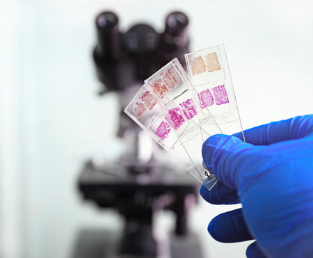 Glass slides in the laboratory. Hand in blue glove holding glass organ samples. Histological examination. The microscope in the background blurred. Pathologist at work. Foto de archivo