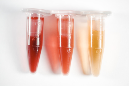 Colored vials. Closed sealed vials of biological samples. The manufacture of medicines. Chemical experiments. Biological research. Stock Photo