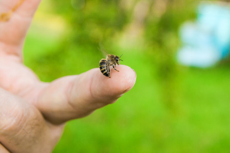 Close up view of the Bee stinging in the human finger of the hand. Some people develop acute allergic reactions to bee stings. 스톡 콘텐츠