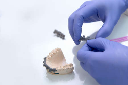 The orthodontist holds the braces in his hands before installing the patient. Jaw layout. Glue application. Beyond recognition. Hands in protective gloves. Health care concept. Top view. Copy space.
