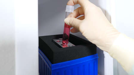 Doctor's hand places a test tube with liquid in a rack. Close-up. Clinical diagnostic laboratory. Research work in a medical laboratory.
