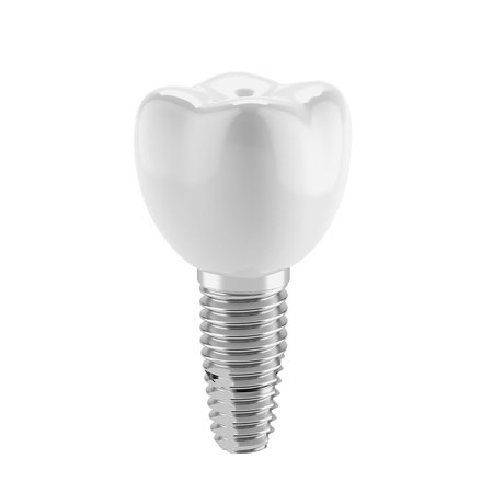 dental research: Tooth implant