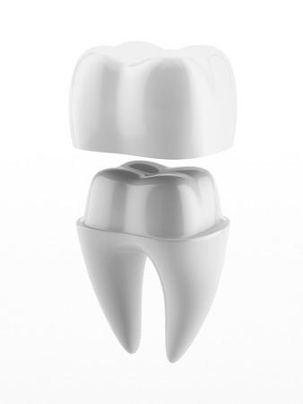 흰색 배경에 고립 된 치과 크라운과 치아