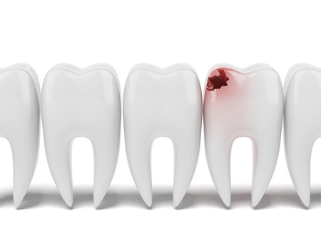 Aching tooth in row of healthy teeth isolated on a white background. 3d render photo