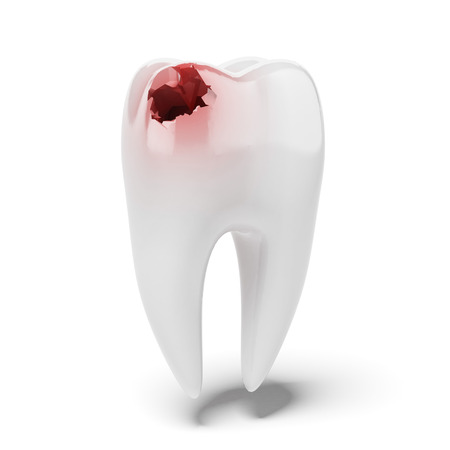 Aching tooth isolated on a white background. 3d render photo