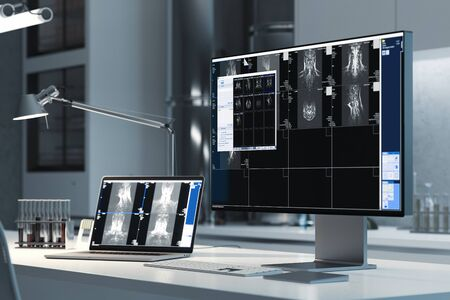 Modern PC in laboratory with magnetic resonance tomography results of patient on screen, 3d rendering. Close up.